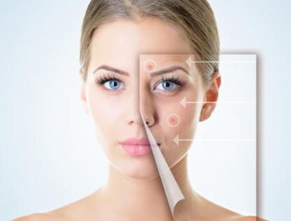 traitement acné Rouen